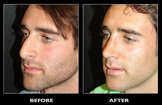 Rhinoplasty Nj Your Nose Makes A Statement