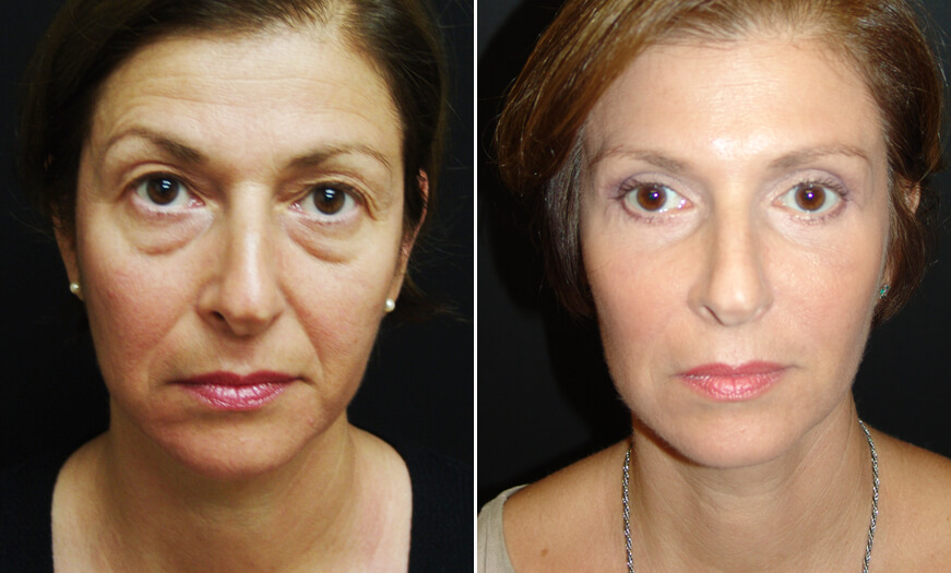 Before And After Blepharoplasty Surgery