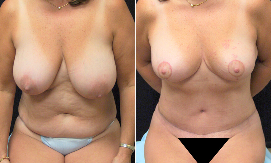 CORE Abdominoplasty Before And After