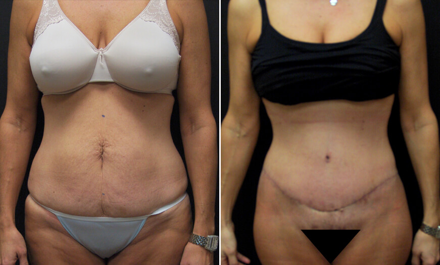 Before And After CORE Abdominoplasty Surgery