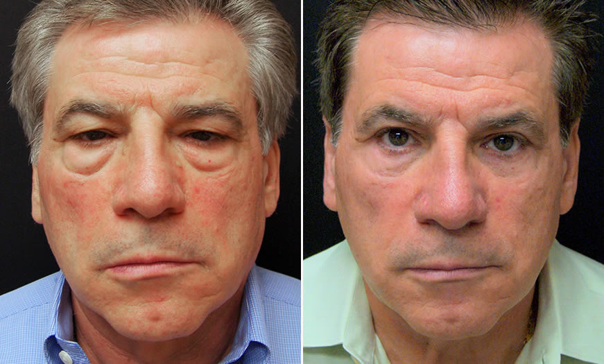 Before And After Festoon Surgery In NJ