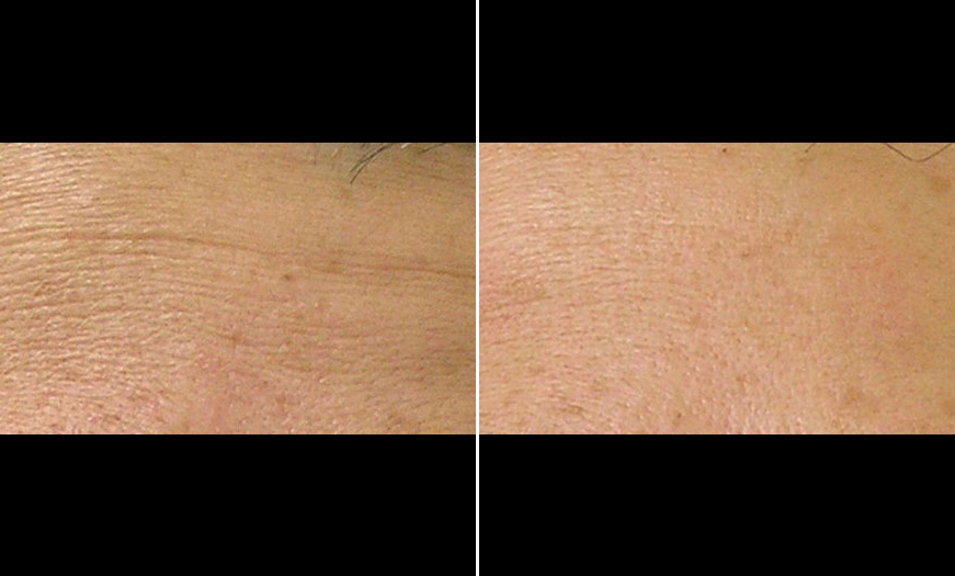 HydraFacial MD® Before & After