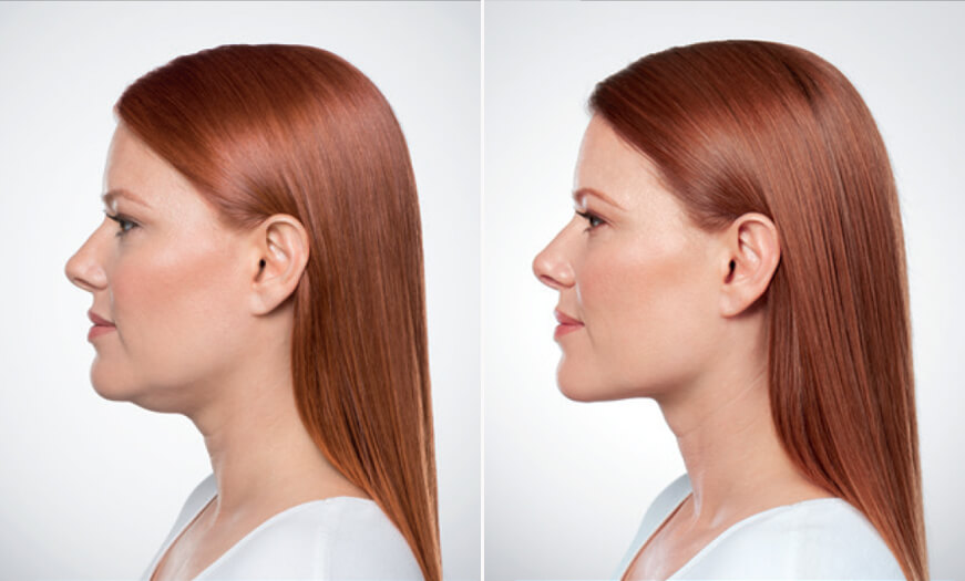 Kybella Treatment Before And After