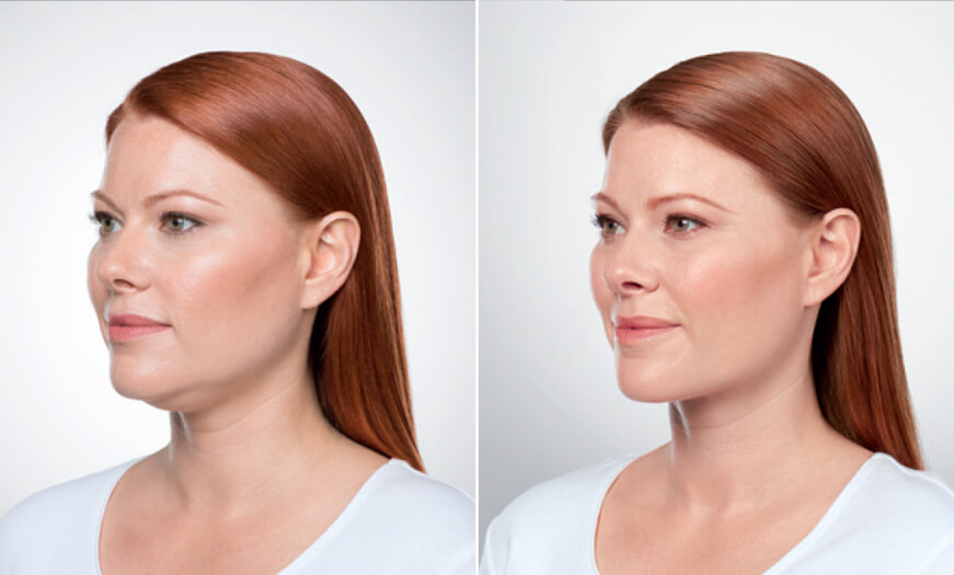Before And After Kybella Injections