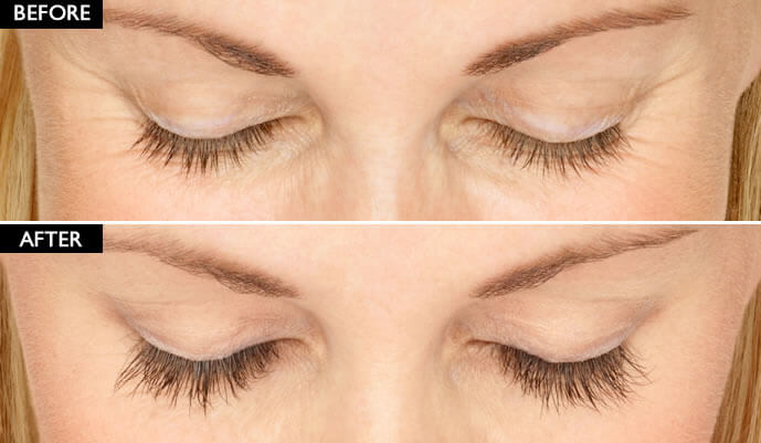 Latisse Eyelash Enhancer Before And After