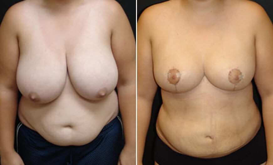 Before And After MAsterTuck Liposuction