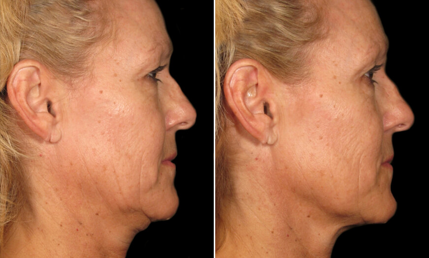 Before And After Ultherapy
