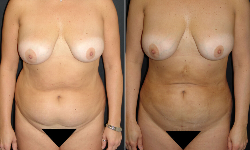 Before And After VASER Lipo