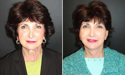 Before & After Face & Neck Lift Front View