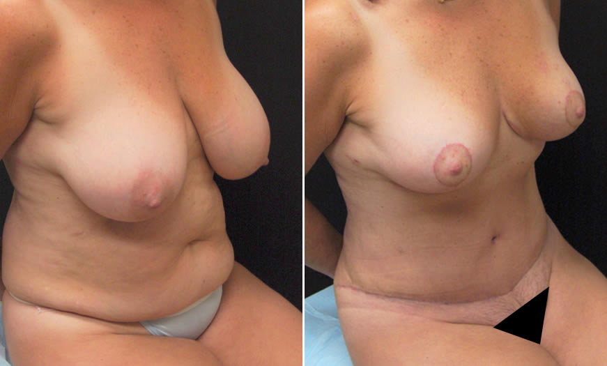 Before & After Core Abdominoplasty Front quarter