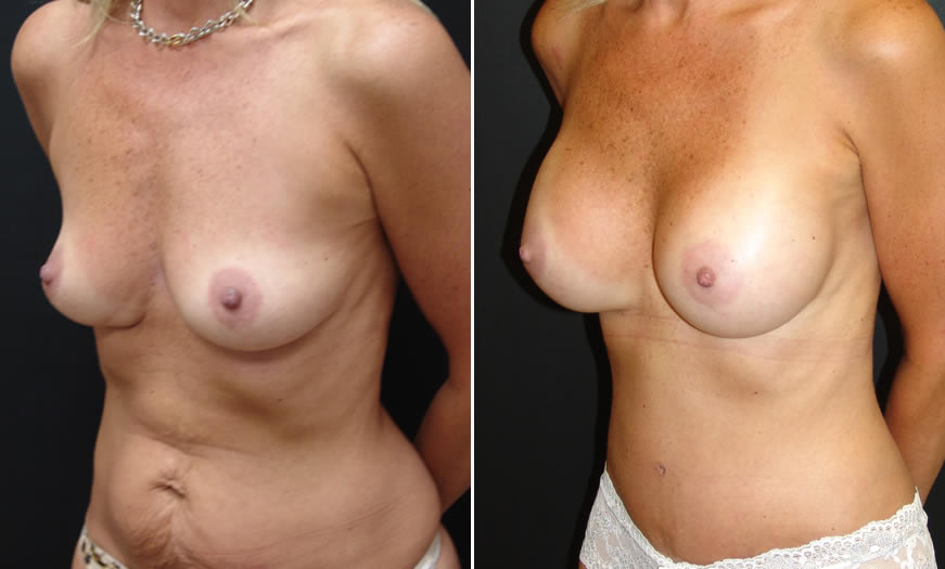 Before & After Core Abdominoplasty Quarter View