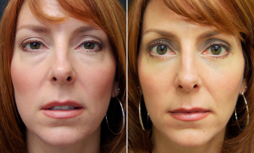 Before & After Blepharoplasty Front View 1