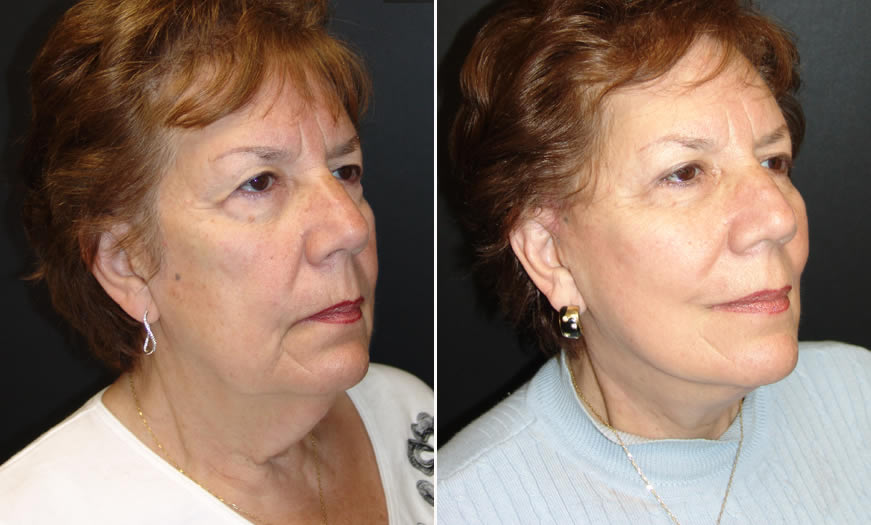 Before & After Face & Neck Lift Quarter Right View
