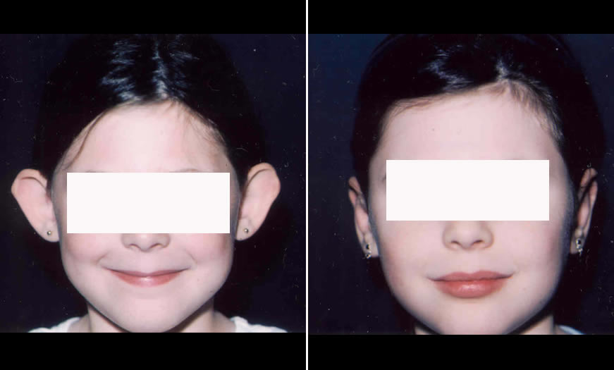 Before & After Otoplasty Front View