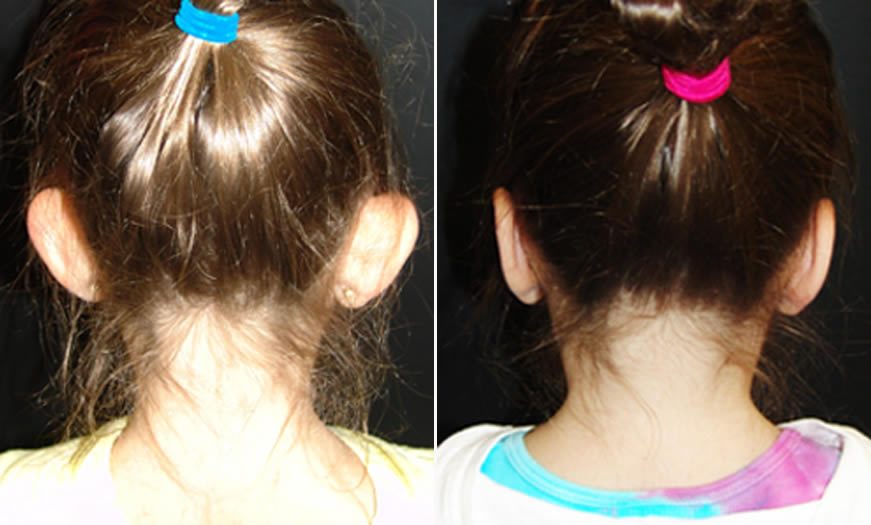 Before & After Otoplasty Back View
