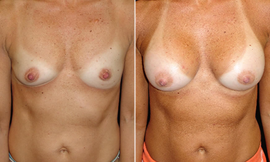 Before & After Breast Augmentation Front View