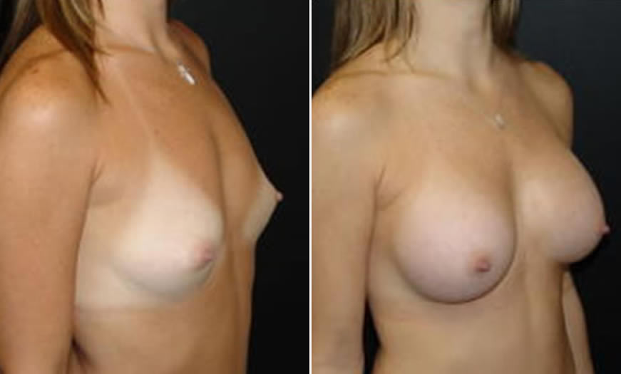 Before & After Breast Augmentation Quarter Right View