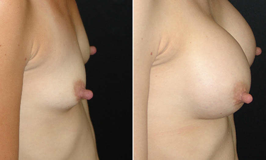 Before & After Breast Augmentation Side Right View