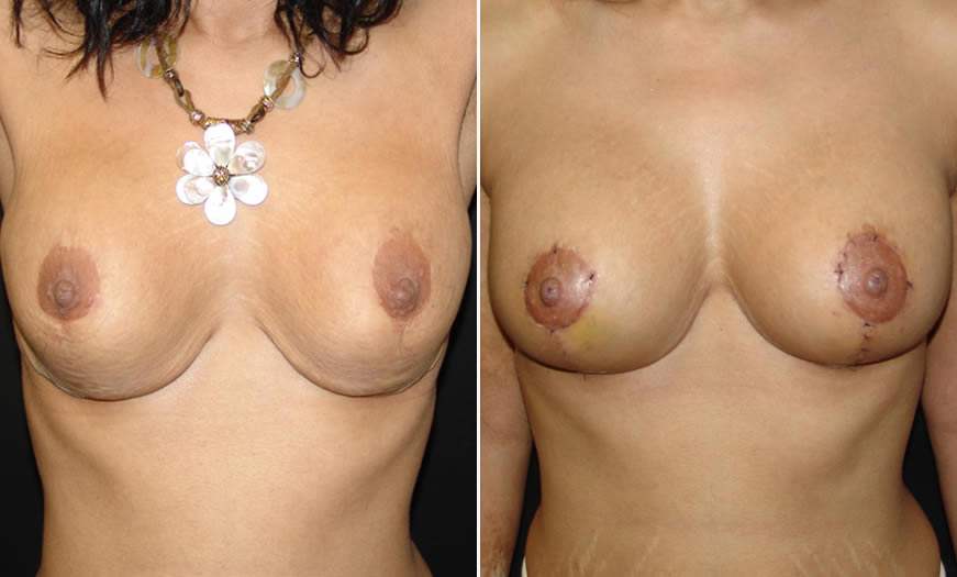 Before & After Breast Lift Front View