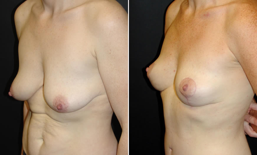 Before & After Breast Lift Quarter Left View