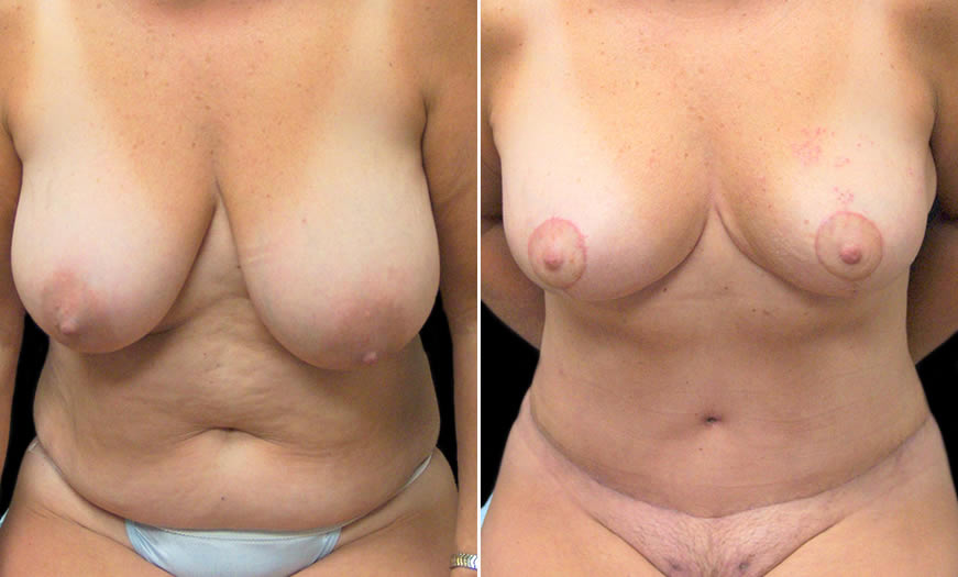Before & After Breast Reduction Front View