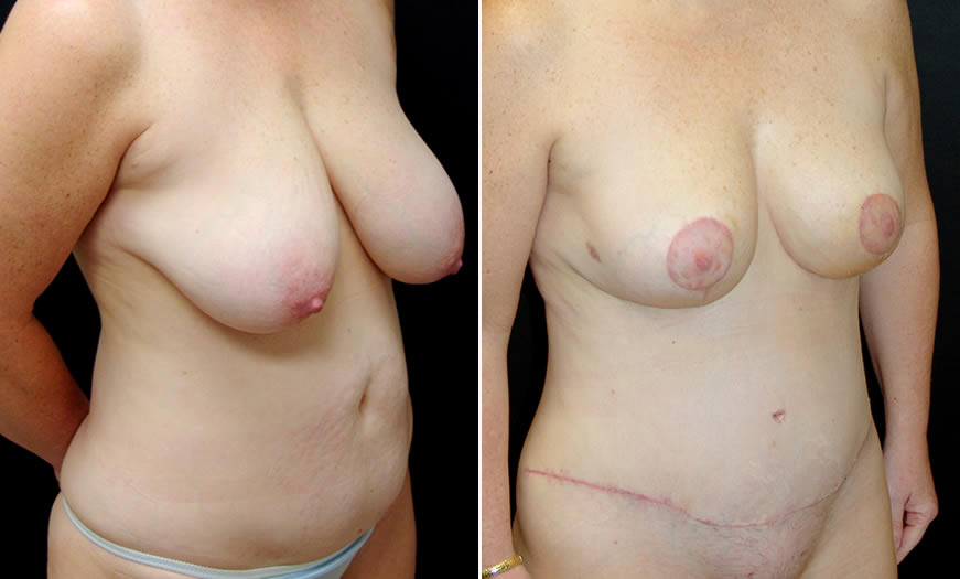 Before & After Breast Reduction Quarter Right View