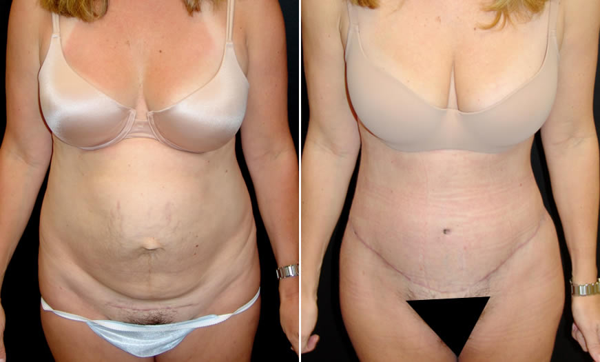 Before & After Core Abdominoplasty Front View