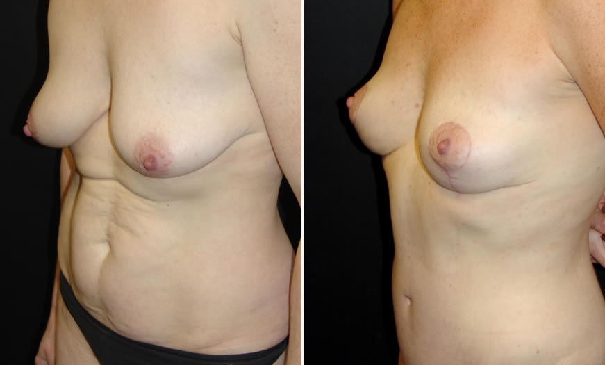 Before & After Core Abdominoplasty Quarter Left View