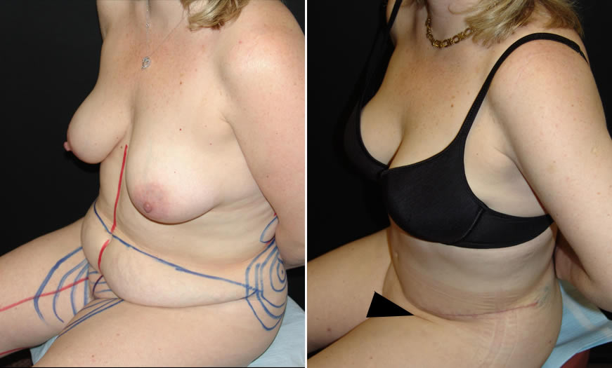 Before & After Tummy Tuck Quarter Left View
