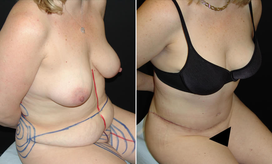 Before & After Tummy Tuck Quarter Right View