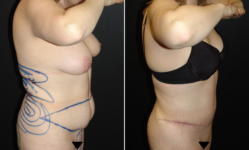 Before & After Tummy Tuck Side Right View