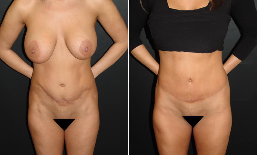 Before & After Tummy Tuck Front View