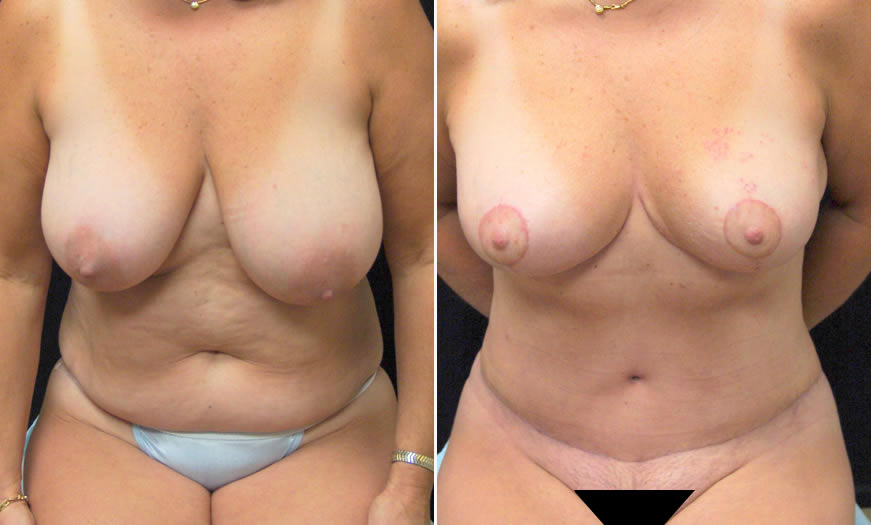 Before & After Tummy Tuck Front View 1