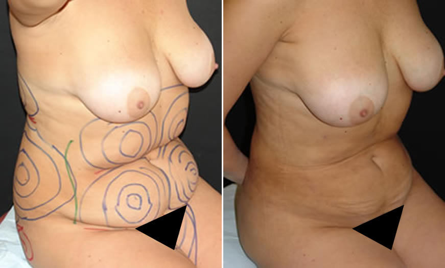 Before & After VASER LipoSelection Quarter Right Sitting View