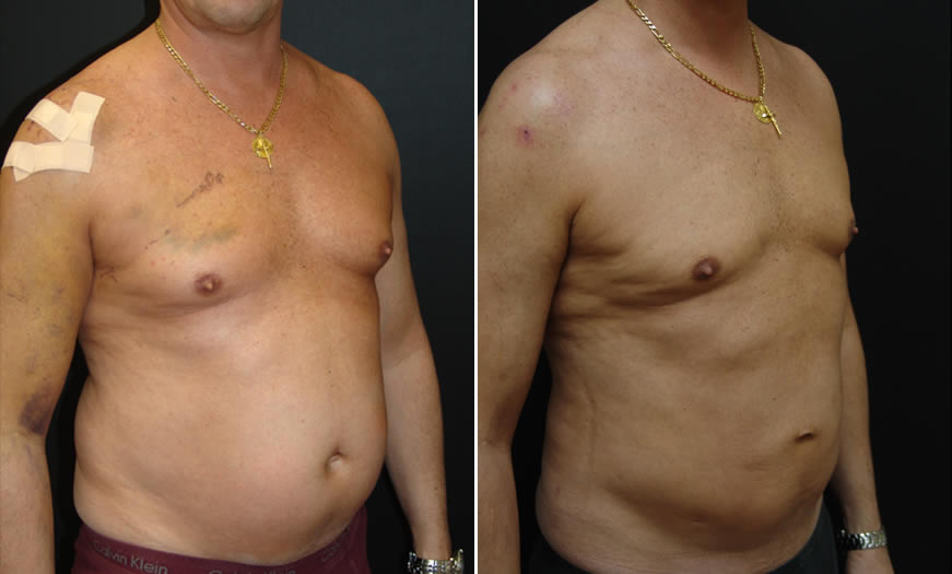 Before & After VASER LipoSelection Quarter Right View