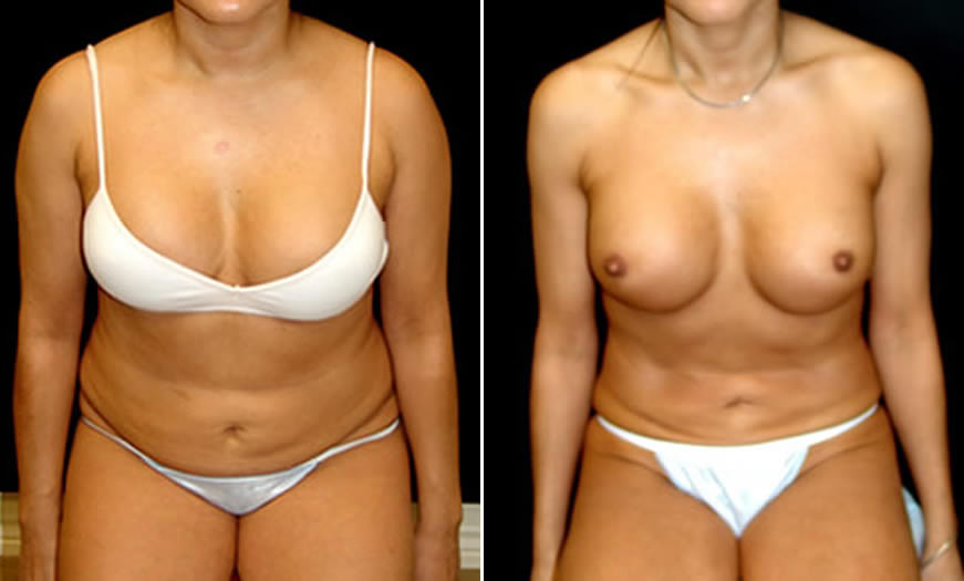 before & after VASER LipoSelection Front Sitting View