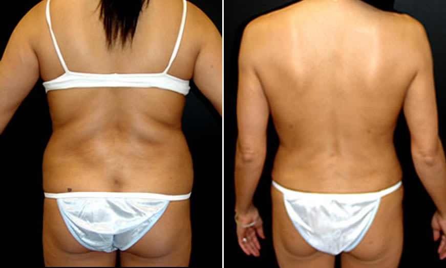 Before & After VASER LipoSelection Back View