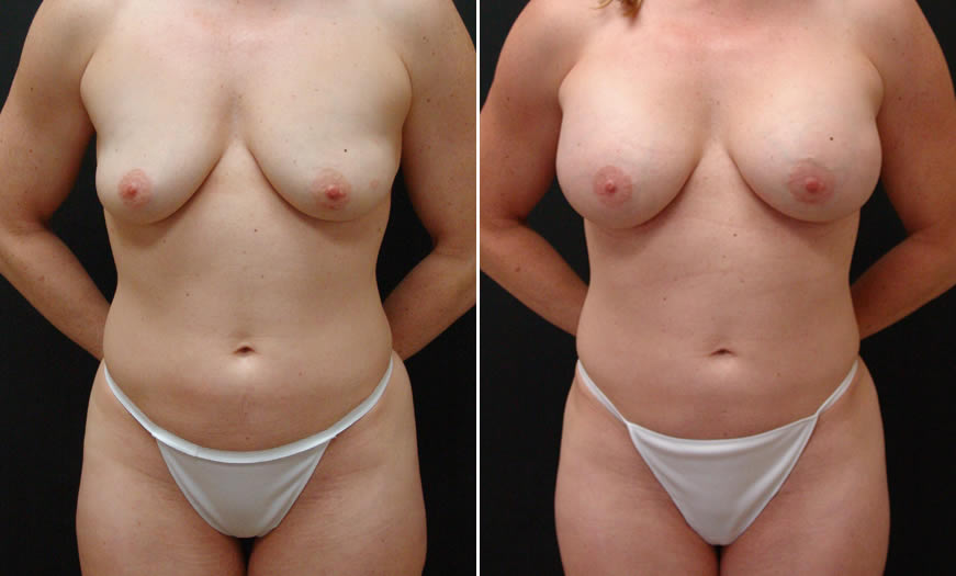 Before & After VASER LipoSelection Front View