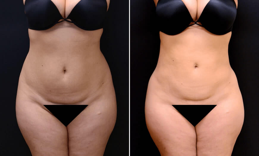 Before & After Liposuction Front View