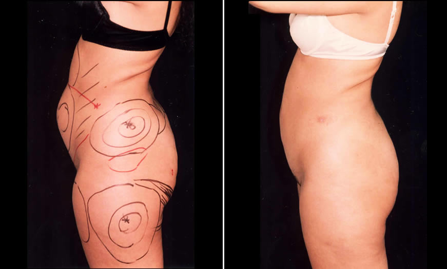 Before & After Liposuction Side Left View