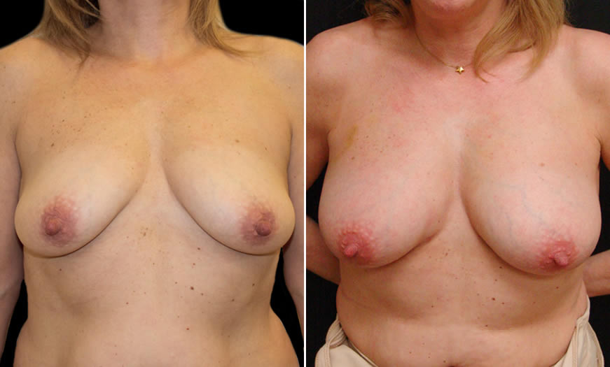 Before & After Fat Grafting Front View