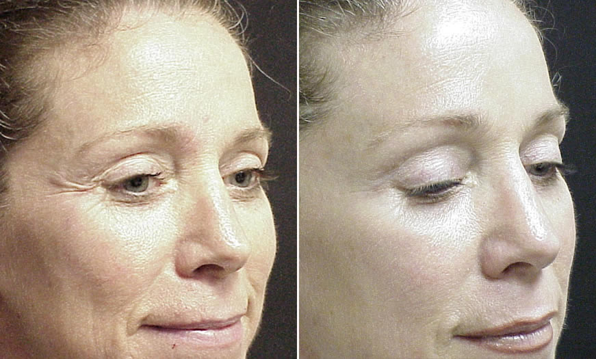 Before & After BOTOX Cosmetic Quarter Right View