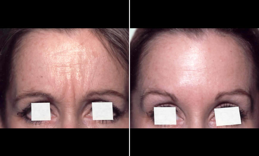 Before & After BOTOX Cosmetic Front View