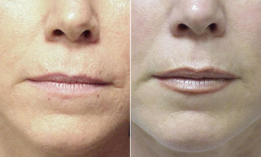 Before & After Cosmetic Fillers Front View