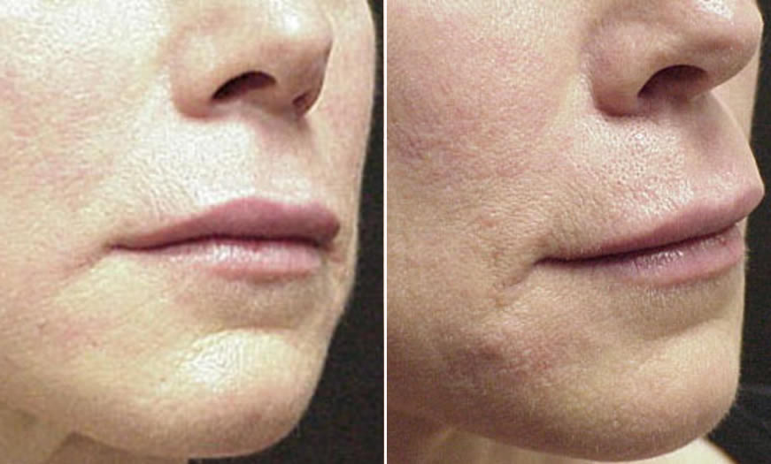 Before & After Cosmetic Fillers Quarter Right View