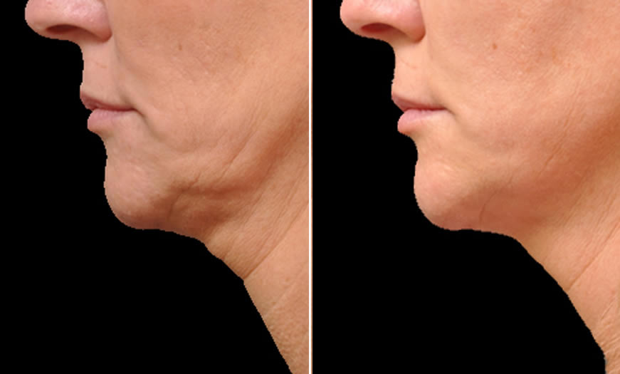 Before & After Ultherapy Side Left View