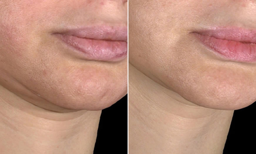 before & after Ultherapy Quarter Right View