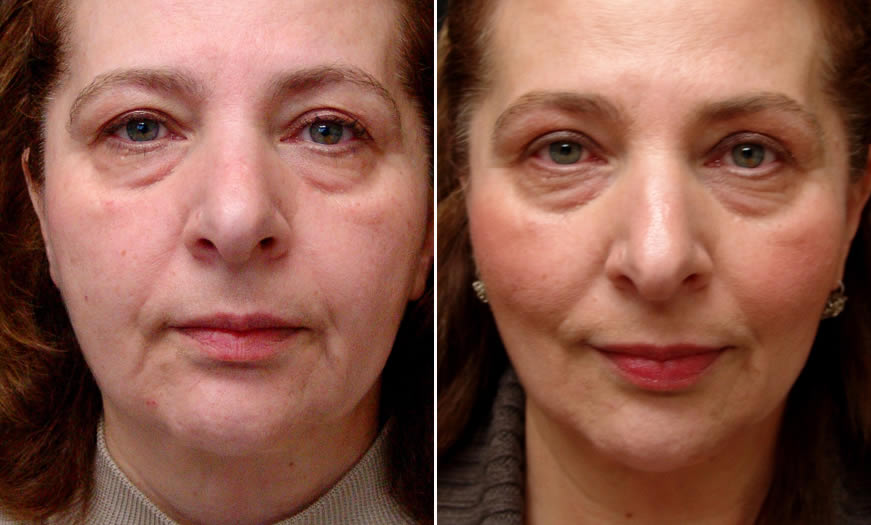 Before & After Ultherapy Front View