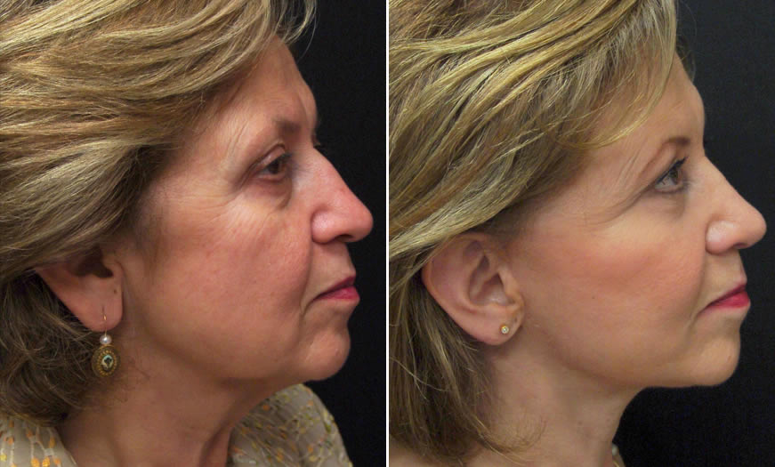 Before & After Combination Procedures Side Right View
