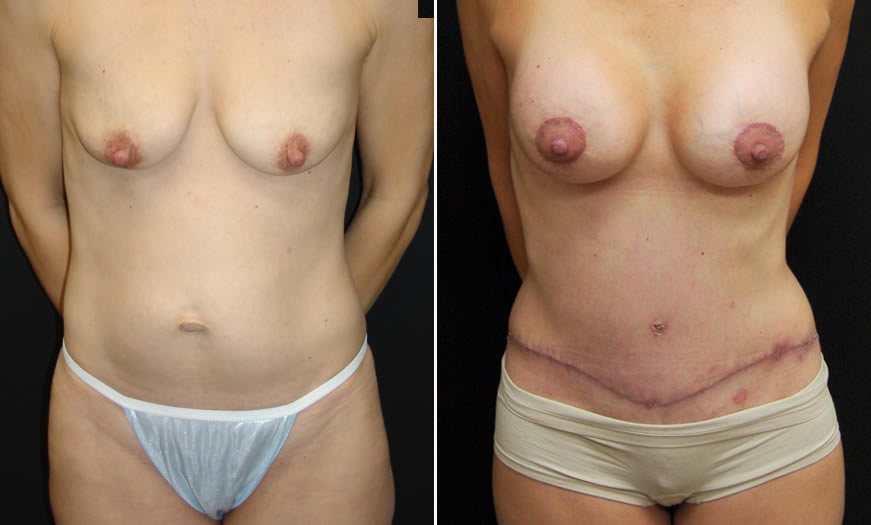 Before & After Combination Procedures Front View